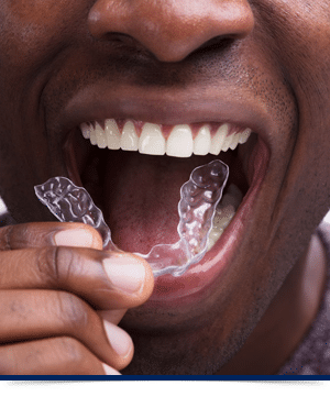 Interior Feature Image Invisalign Dorminey Orthodontics